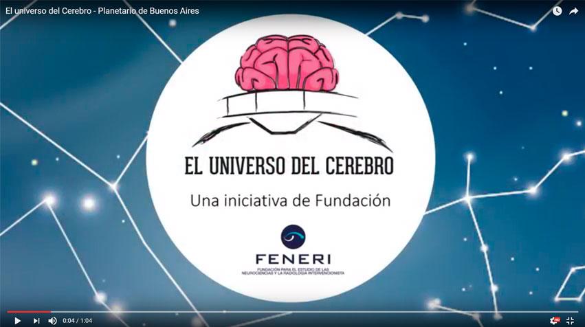 Un viaje en 360° por el interior del cerebro para  luchar contra el ACV