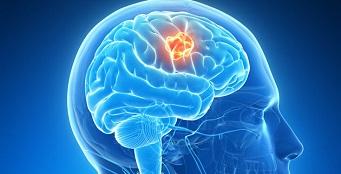 Neurointervencionismo: Curso de Actualización 2018